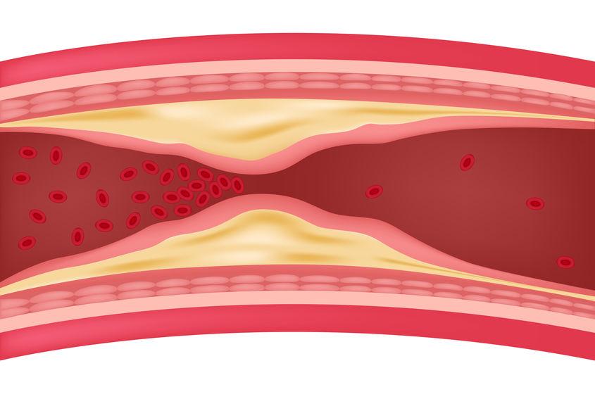 ateloskleroz